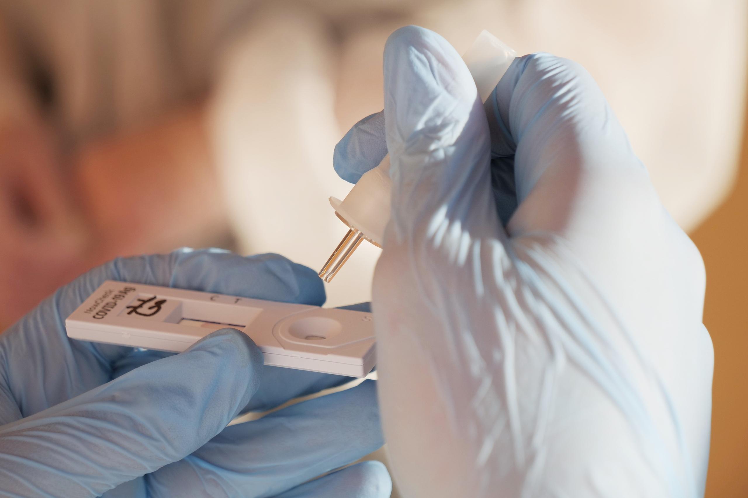 На Полтавщині планують збільшити кількість тестувань на коронавірус для контактних осіб